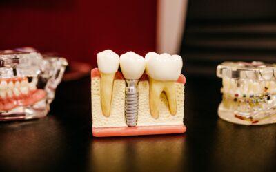 """""""Zahnprobleme sind weit verbreitet und gehen durch alle Bevölkerungsgruppen"""""""